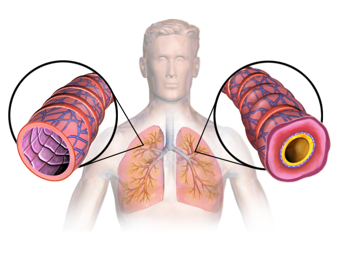 Figure 1. Asthma's exaggerated contraction of airways is due to a lack of smooth muscle relaxant.