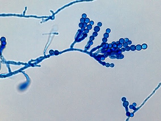 Figure 1: Shown here is an example of Scopulariopsis, a genus of fungi capable of living in the absence of soil, air, plant debris, and dung. A new species of this fungi was recently discovered in cotton plants in Hangzhou, China.
