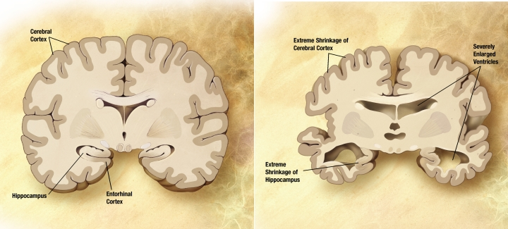 Figure 3. Slow wave activity and low quality sleep affect levels of amyloid beta and tau levels respectively which are linked to Alzheimer's.