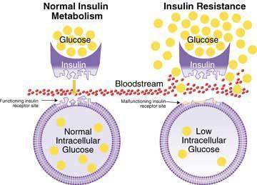 insulinresistance.jpg