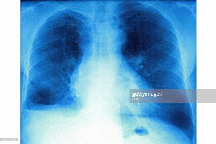 LungFibrosis